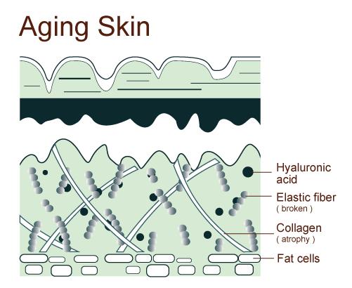 aging-skin